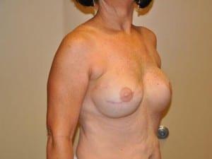 Breast Reconstruction 2540