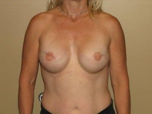 Breast Reconstruction 2547