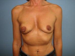 Breast Reconstruction 2554