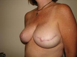 Breast Reconstruction 2557
