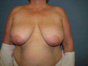 Breast Reconstruction 2567