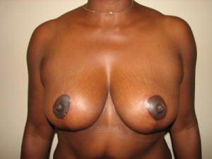 Breast Lift 2728