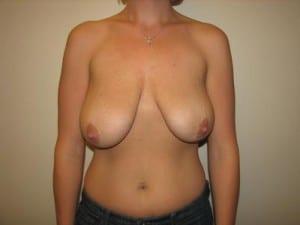 Breast Lift 2735
