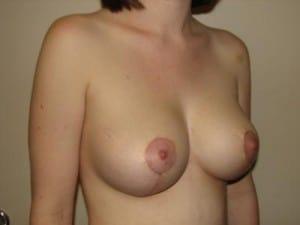Breast Lift 2749