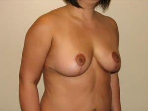 Breast Lift 2754