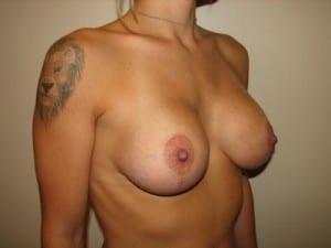 Breast Lift 2761