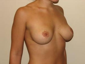 Breast Lift 2766