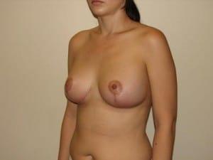Breast Lift 2773