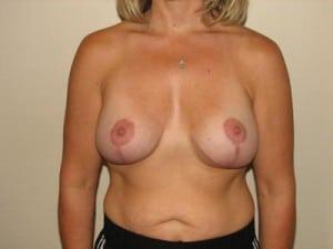 Breast Lift 2780