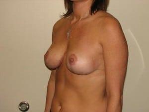 Breast Lift 2783