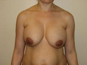 Breast Lift 2797