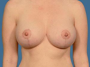 Breast Lift 4357