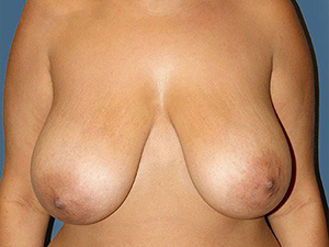Breast Reduction 2690