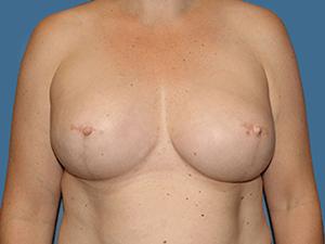 Breast Reconstruction 2586