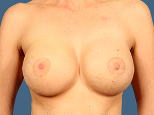 Breast Reconstruction 5002
