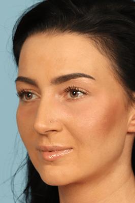 Facial Fat Transfer & CO2 Laser 4003