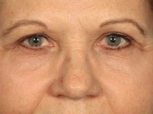 Blepharoplasty 4003