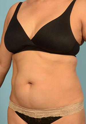 Liposuction 1001