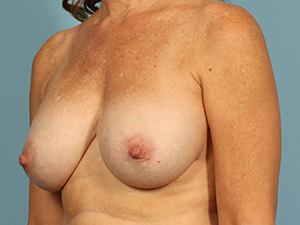Breast Implant Removal 1000