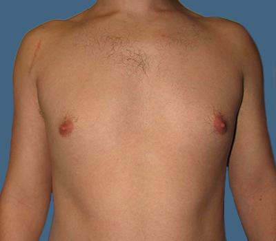 Gynecomastia 3081