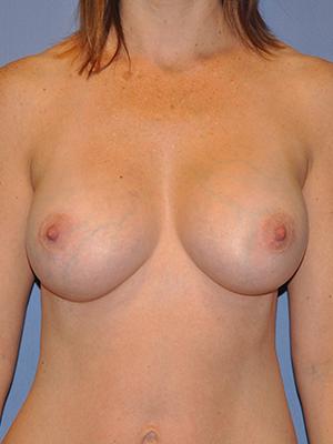 Breast Augmentation 13717