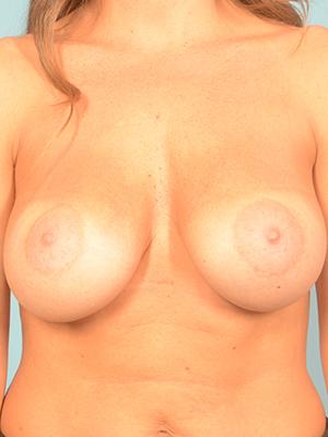 Breast Augmentation 18126