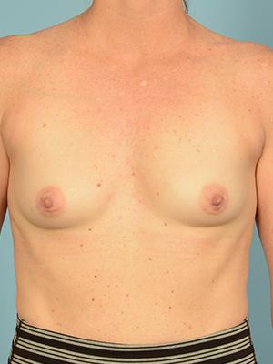 Breast Augmentation 20081
