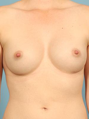 Breast Augmentation 18352