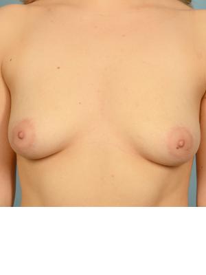 Breast Augmentation 21903