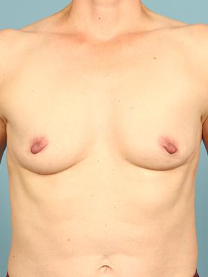 Breast Augmentation 24714