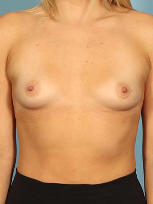 Breast Augmentation 16689