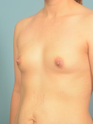 Breast Augmentation 20948