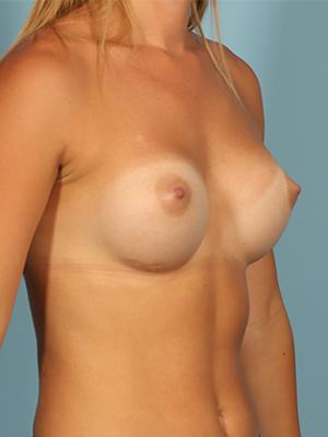 Breast Augmentation 21577
