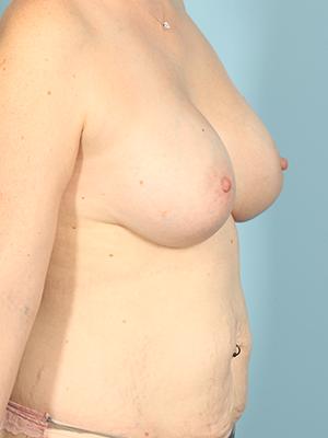 Breast Augmentation 23126