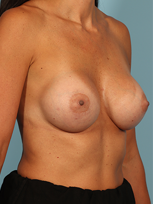 Breast Augmentation 25567