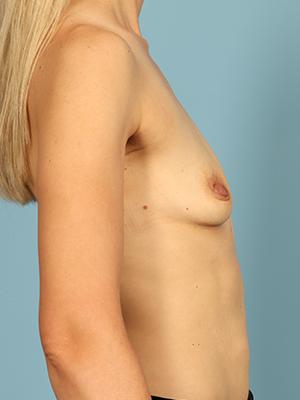 Breast Augmentation 26840