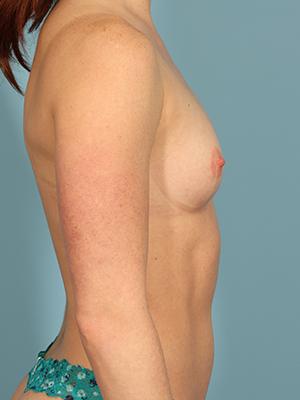 Breast Augmentation 28142
