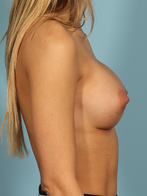 Breast Augmentation 28606