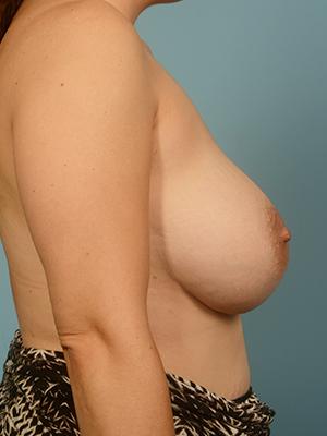 Breast Augmentation 9753