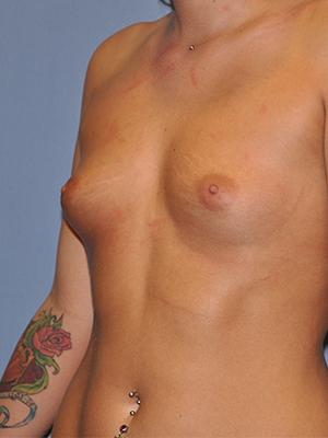 Breast Augmentation 13111