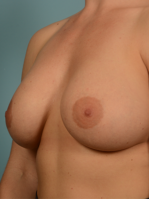 Breast Augmentation 13690