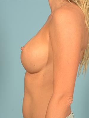 Breast Augmentation 16079