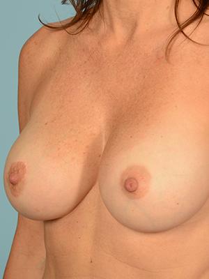 Breast Augmentation 17447