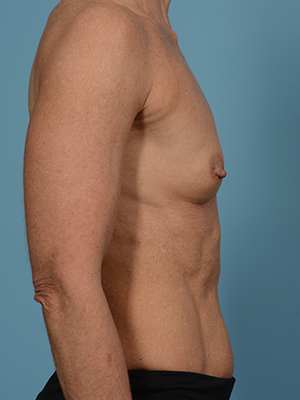 Breast Augmentation 17692