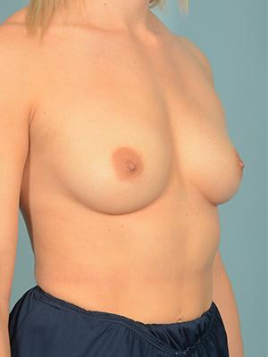 Breast Augmentation 18773
