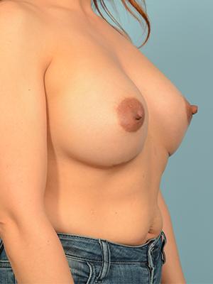 Breast Augmentation 18855