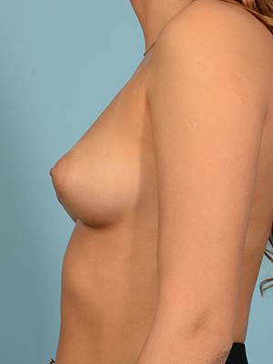 Breast Augmentation 19051