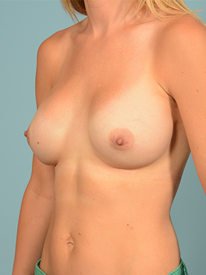 Breast Augmentation 19604