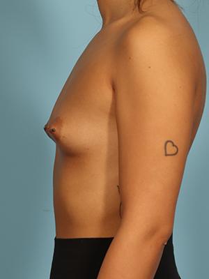 Breast Augmentation 29411